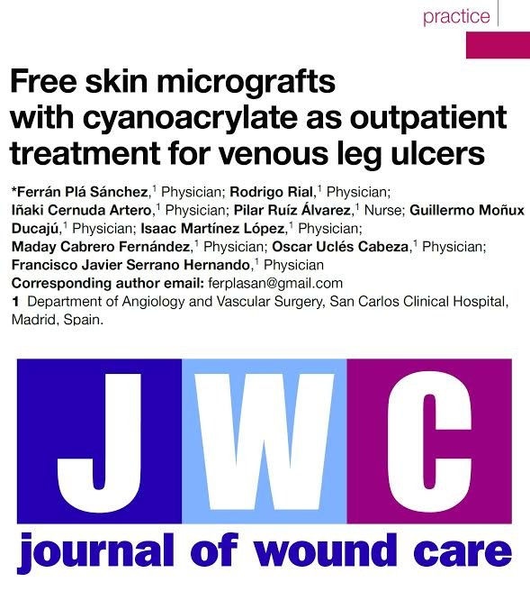 Nueva Publicación del Dr. Rial «Free skin micrografts with cyanoacrylate as outpatient treatment for venous leg ulcers» en el Journal of Wound Care