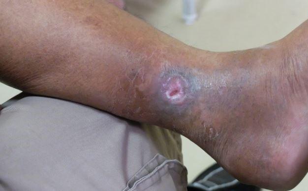 Tengo un paciente con una úlcera venosa que no cura… ¿qué puedo hacer?